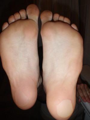 Fraturas do pé por estresse