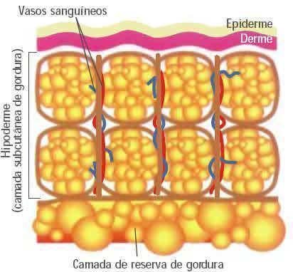 celulite reserva de gordura ll