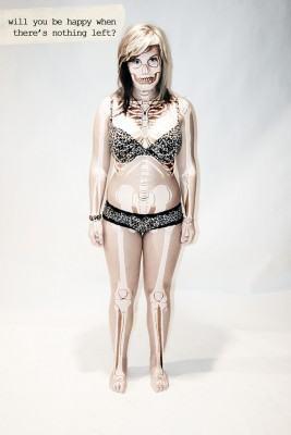 Causas da anorexia nervosa e Bulimia