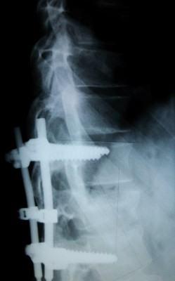 Lesões na coluna devidas a acidentes, que acontece no corpo